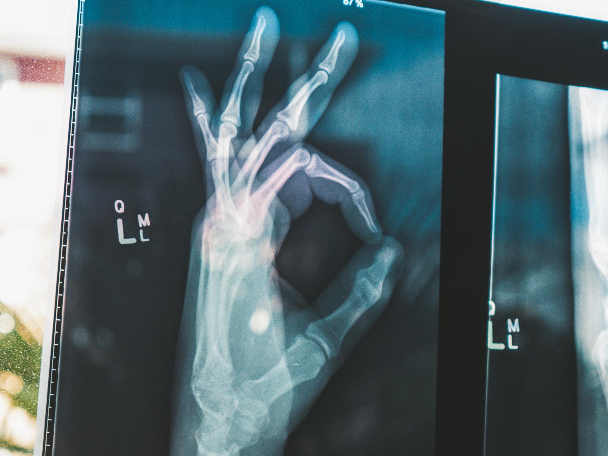 Röntgenbild von Hand